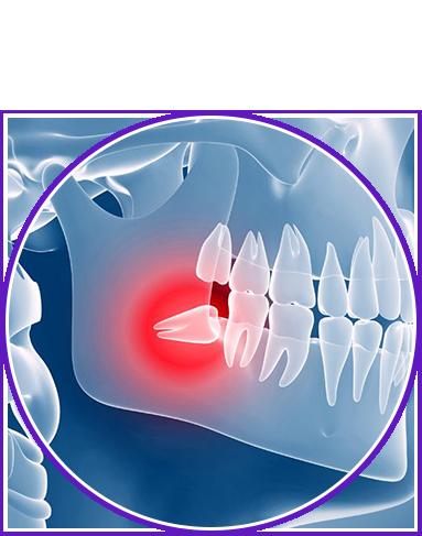 odontoiatria estrattiva