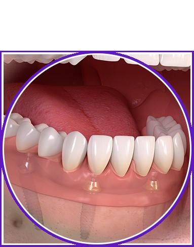 protesi fissa1