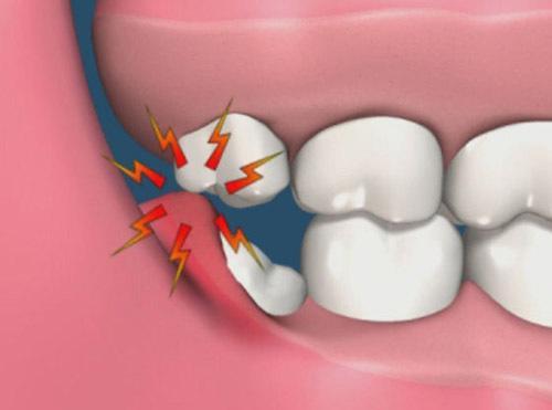 estrazione dente del giudizio_infiammazioni