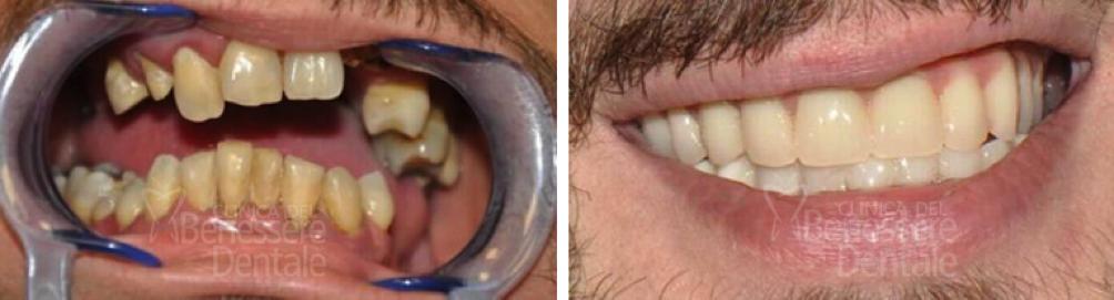 Risultato prima e dopo di protesi fissa avvitata su impianti