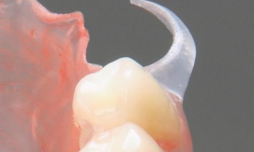 protesi provvisoria termoplastica