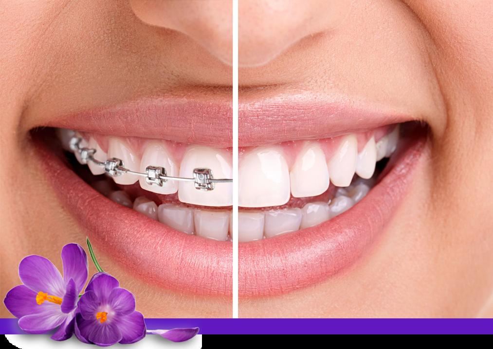 ortodonzia raddrizzare i denti