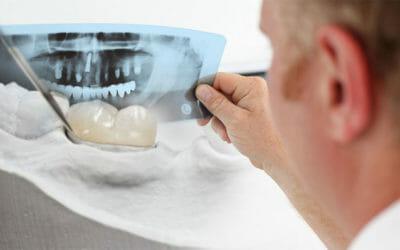 Ricostruzione dente: come avviene, tecniche, durata e costi