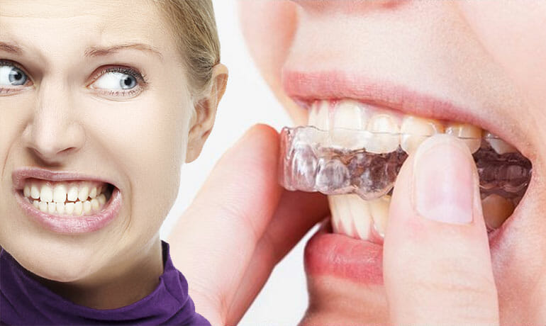 Bruxismo (digrignare i denti): rimedi, cause sintomi, conseguenze