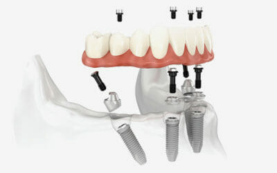 Implantologia a carico immediato: vantaggi, rischi e controindicazioni