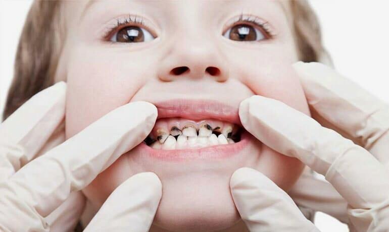 Cosa bisogna fare in caso di denti cariati: cause, sintomi e cure