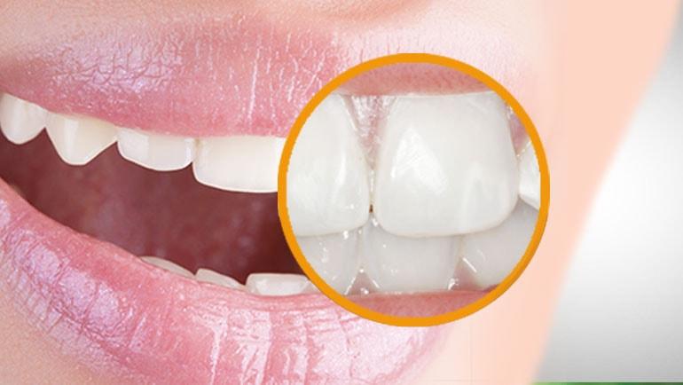 Macchie bianche sui denti: come eliminarle, cause e sintomi