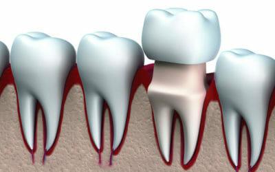 Corona dentale: durata, materiali, vantaggi e costi