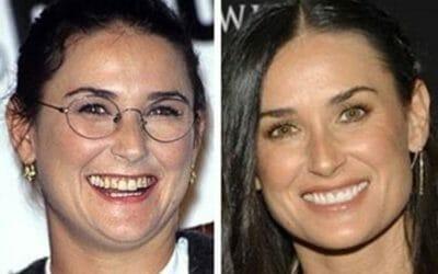 Odontoiatria Estetica: Faccette dentali, sbiancamento e ornamenti dentali