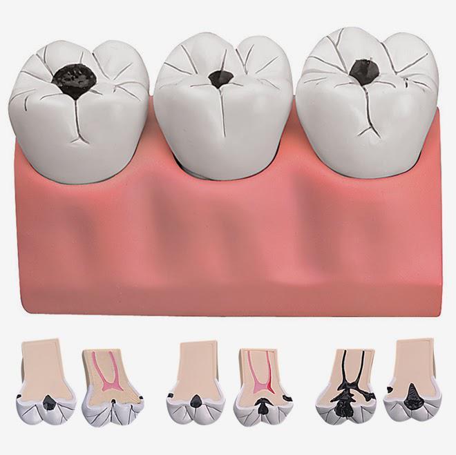 Schema della progressione della carie che inizialmente interessa la corona del dente e che se non intercettato arriva silente sino alla camera pulpare e ai canali endodontici.