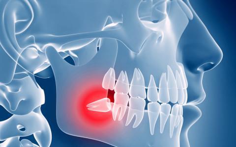estrazione denti del giudizio 1