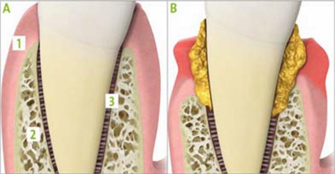 A: Dente sano con legamento intatto B: Stadio avanzato d'infiammazione con distruzione del parodonto 1 = gengiva 2 = osso 3 = legamento parodontale