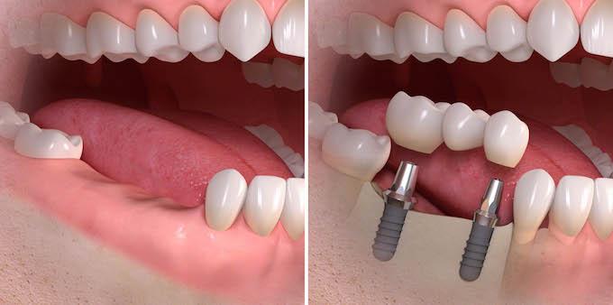 Prima e dopo il trattamento-implantare in mancanza di tre elementi dentali ponte su due impianti