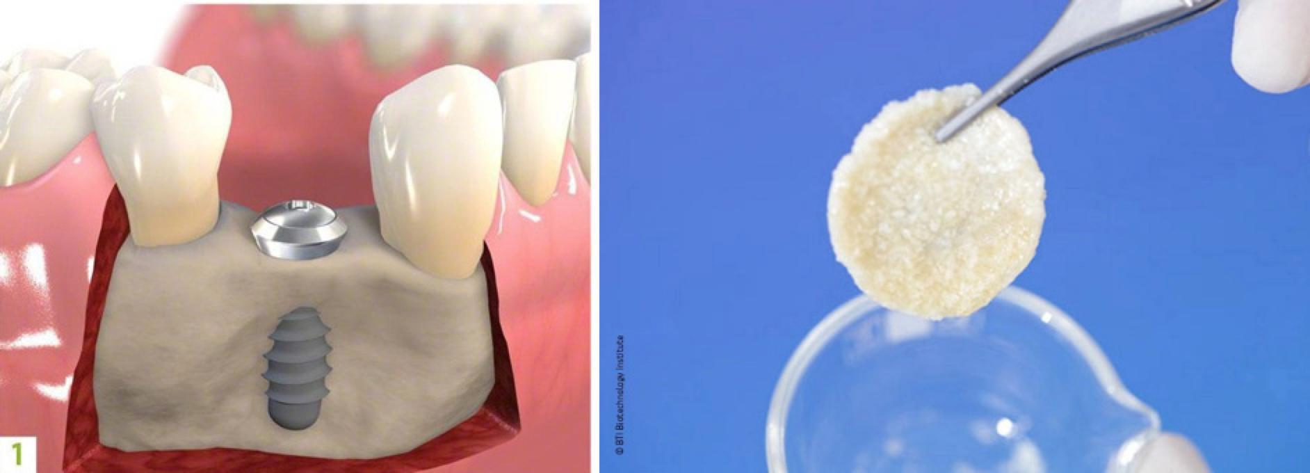 Aumento di osso con terapie autologhe PRGF estremamente efficaci(osso Geistlicht con patentino e lotto).