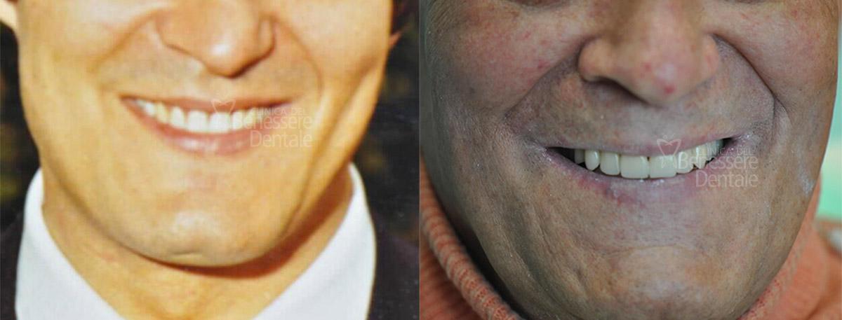 Un bel caso di riabilitazione: foto a sinistra da giovane e dentatura naturale, foto a destra attuale con protesi