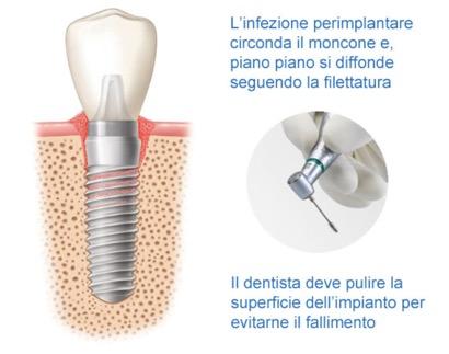 perimplantite