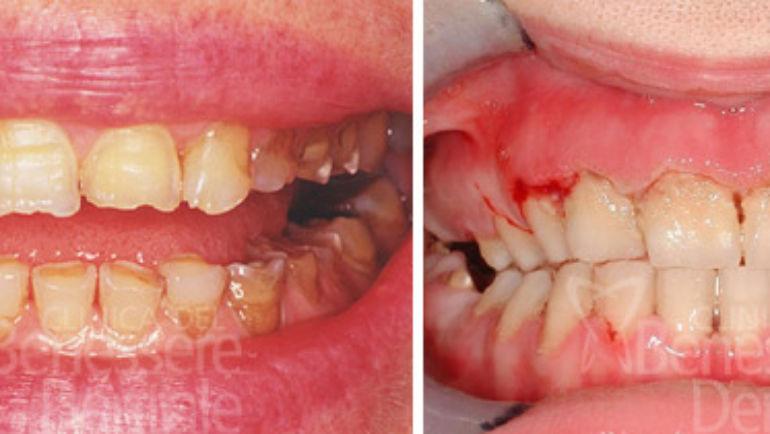 Relazioni fra anoressia e dentatura