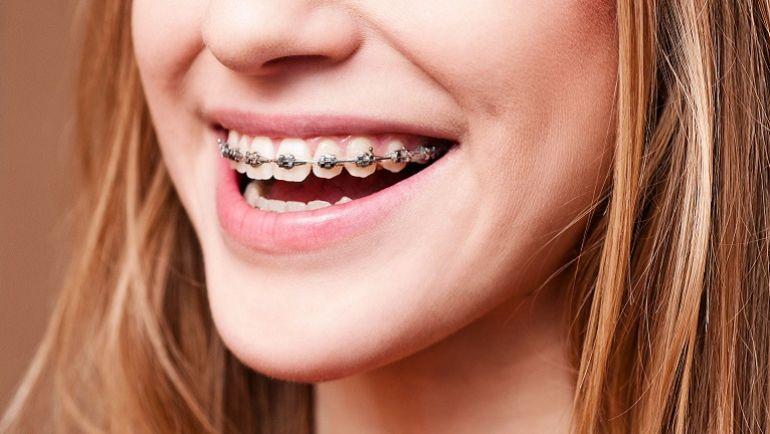 Denti storti: cause e rimedi senza apparecchio