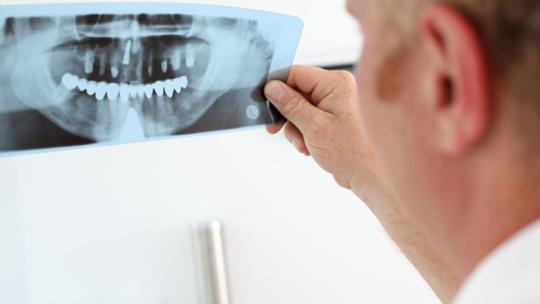 Come scegliere un buon dentista: consigli e aspetti da tenere a mente