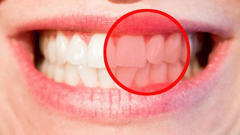 Parodontite (piorrea): cause, sintomi e come curarla senza interventi chirurgici